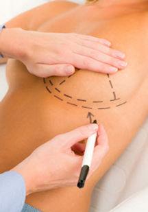 Breast Implants Stamford CT - Dr. Rosenstock