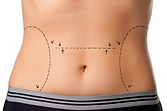 Dr. Rosenstock offers liposuction in his Stamford CT plastic surgery facility.