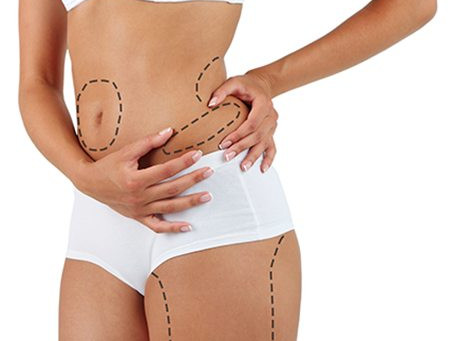 Is Liposuction Right For Me?