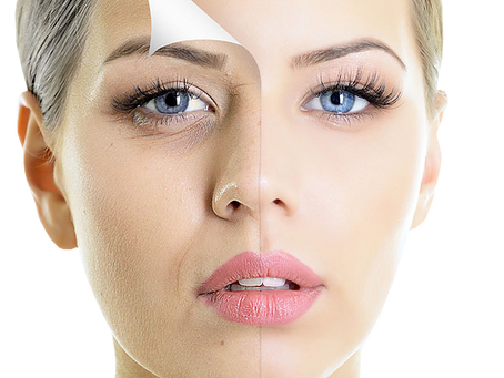 Facelift - What is it, and what is the cost?