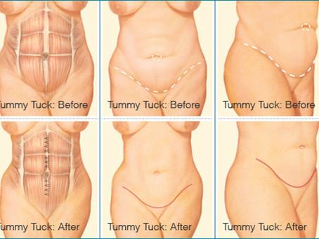 When All Else Fails: Tummy Tuck
