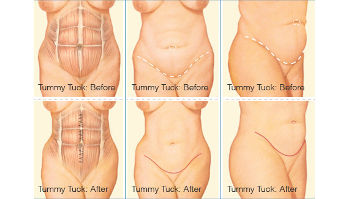 Tummy Tuck Before & After - Stamford, CT Plastic Surgery