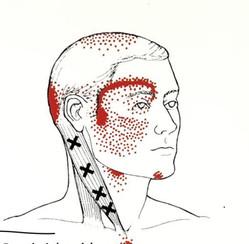 Trigger Punkt Behandlung