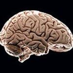 brain12.jpg