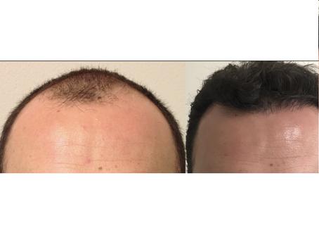 Microinjerto de cabello, técnica F.U.Excision