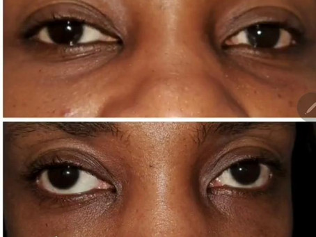TEAR TROUGH FILLERS FOR HOLLOWNESS UNDER EYE