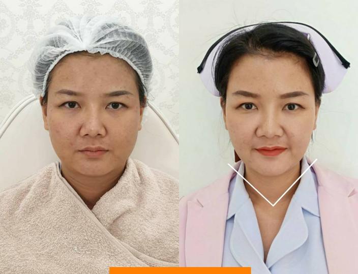 Aki clinic Botox กราม 03.jpg