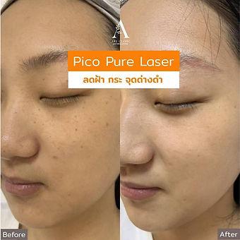 aki clinic pico pure laser 04.jpeg
