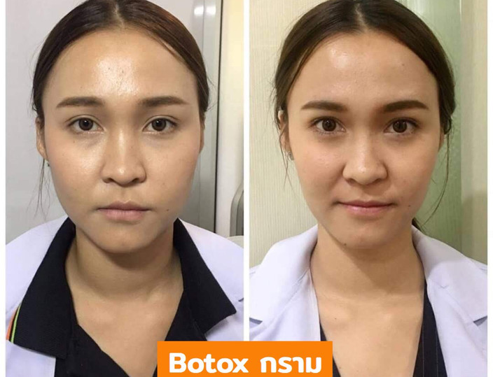 Aki clinic Botox กราม 01.jpg
