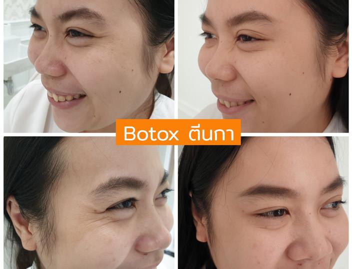 Aki clinic Botox ตีนกา 01.jpg