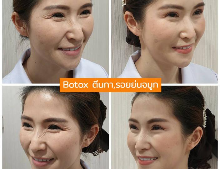 Aki clinic Botox ตีนกา รอยย่นจมูก.jpg