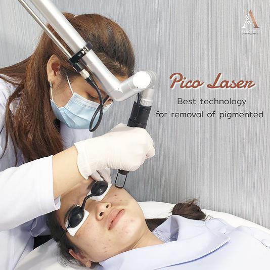aki clinic pico pure laser02.jpeg