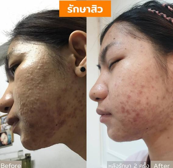 Aki clinic Acne รักษาสิว 02.jpg