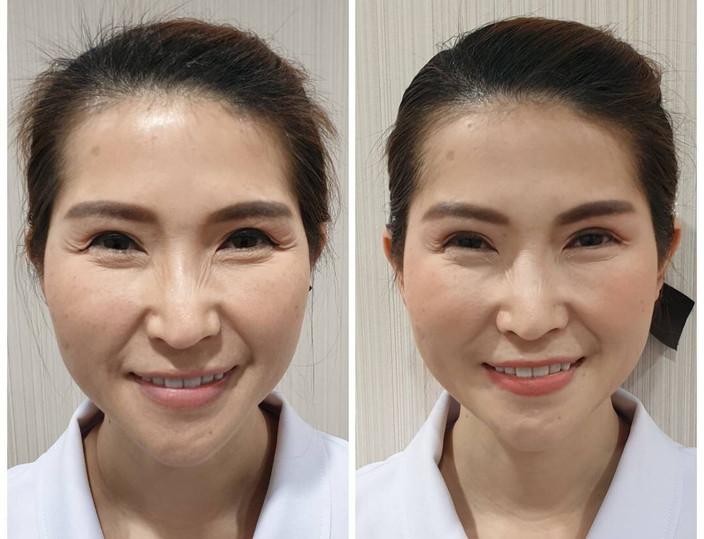 Aki clinic Botox รอยย่น.jpg