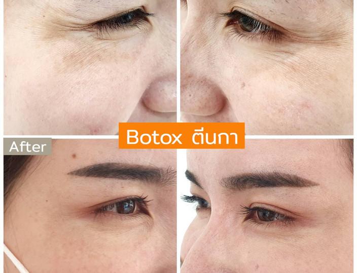 Aki clinic Botox ขมวดคิ้ว 02.jpg