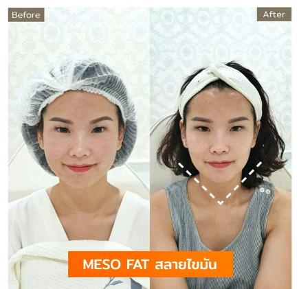 Aki clinic meso fat RE.jpg