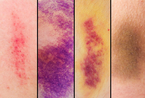 Bruise changes color over time, HealFast