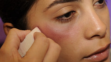 Want to prevent bruising after Botox & Fillers?