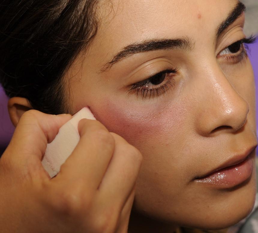 Botox bruising, HealFast, supplements