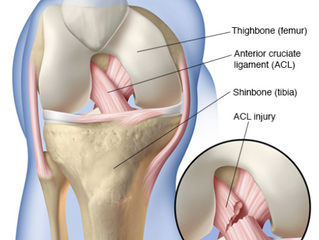 Road to Recovery: ACL Injury and Surgery, Part 1