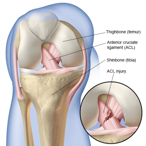 HealFast, ACL Knee Injury image, Mayo Clinic