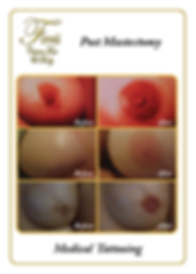 Before and After images of post mastectomy treatment in Beverly Hills