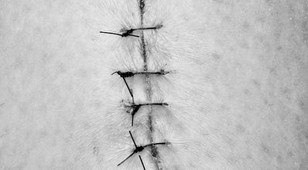A SUTURE