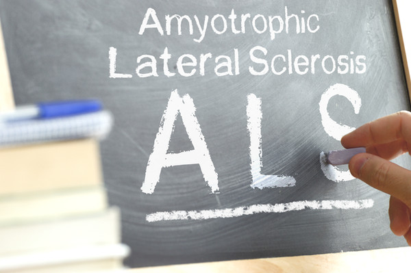 ALS photo showing Amyotrophic Lateral Sclerosis
