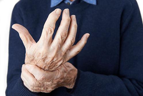 arthritis in mans hand