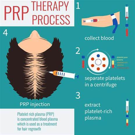 PRP PROCESS