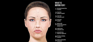 WHAT IS BOTOX FOR?