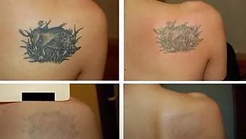 Shoulder Tattoo.webp