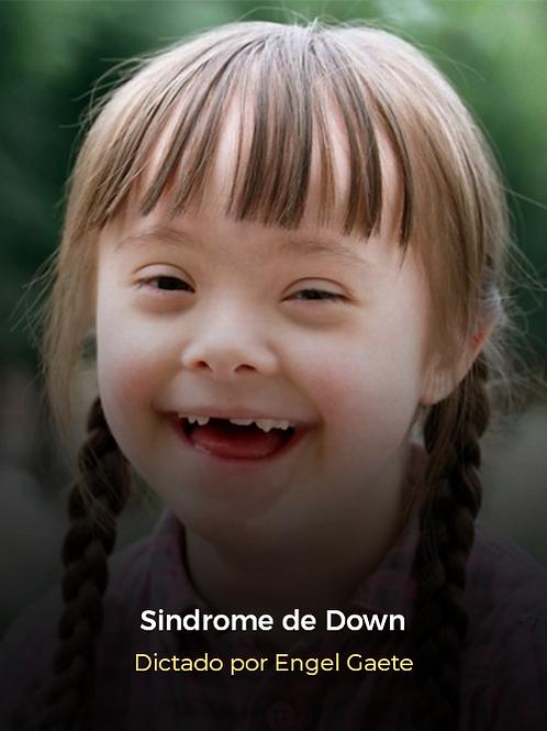 Niños con Síndrome de Down: Habilidades Tempranas de Comunicación