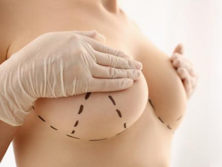 Tipos de implantes mamarios según su forma