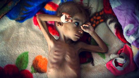 Yémen, Guerre: 14 millions de personnes menacées de famine.