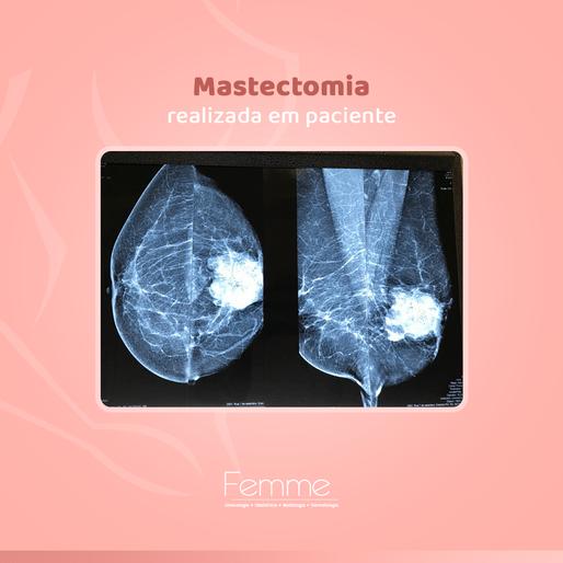 Mastectomia realizada em paciente