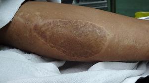 Old scar aroung the thigh due to previou