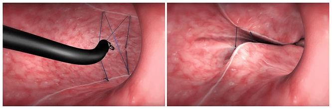 Sleeve Endoscópico - Redução de Estômago