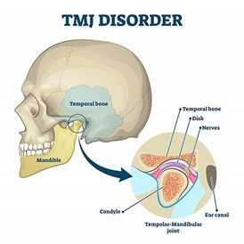 What is the TMJ and how can we treat it?