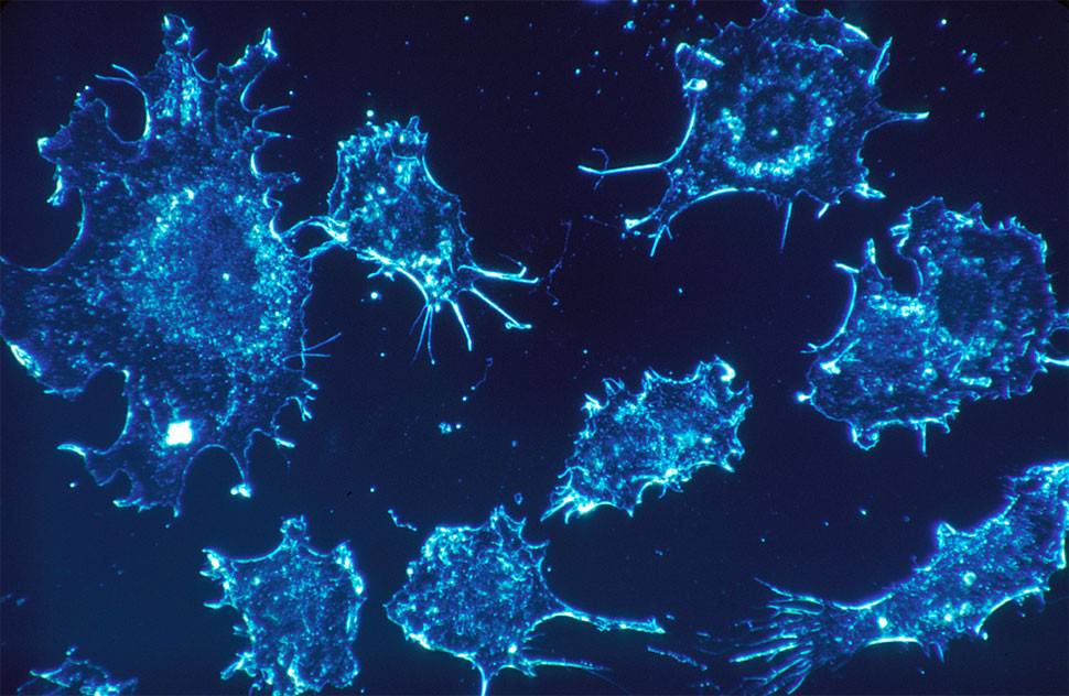 Cancer Cells Dying from Gene that was turned off by phytonutrients