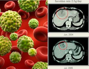 Metastasis and Fucoidan