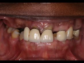 Natural Looking Acrylic Partial Dentures (plastic partial dentures)