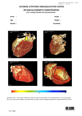 4th page of the 3D Cardiac Cartography report from the 3DCCG Machine and shows a 3D version of the heart. Cardiovascular cartography is a completely non-invasive way to detect heart issues even at an early stage.