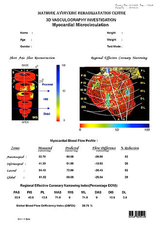 3rd page of the 3D Cardiac Cartography report from the 3DCCG Machine and shows the patient's heart blockages and percent reduction in blood flow. Cardiovascular cartography is a completely non-invasive way to detect heart issues even at an early stage.