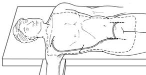 Syndrome de Leriche - Pontage axillofémoral