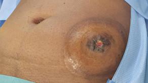 Colostomie sigmoïdienne en canon de fusil - 8 mois - Rétablissement de continuité colique
