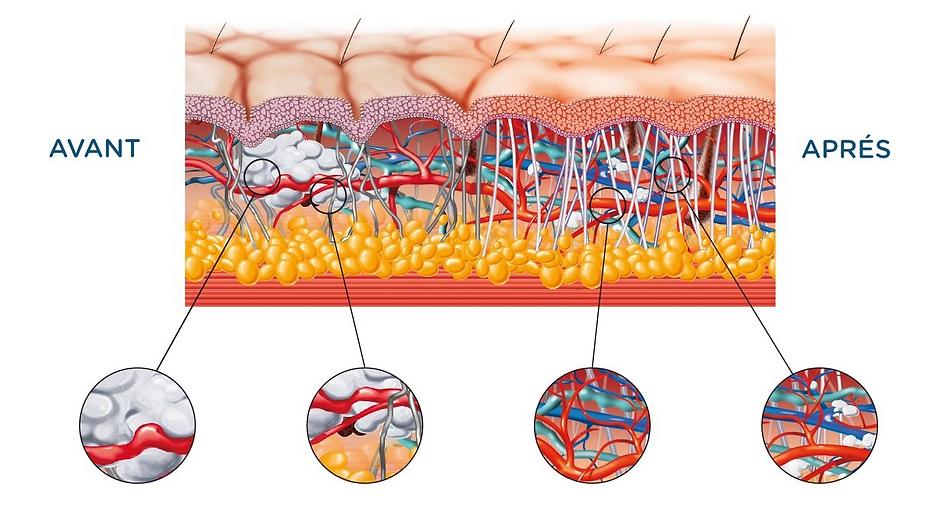 Illustration démontrant la composition des tissus à l'intérieur du corps entre la peau et les muscles.