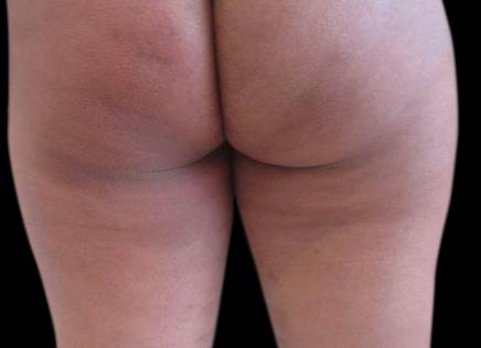 Photo après un traitement de BLT Celletone pour démontrer les résultats visible sur la peau des fesses après 4 traitements de BLT Celletone.