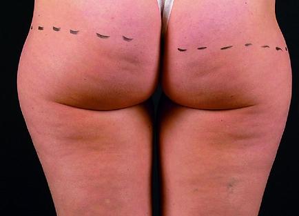 Photo avant un traitement de BLT Celletone pour comparer les résultats visible sur la peau des fesses après 4 traitements.