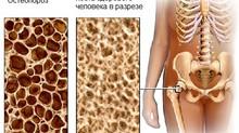 Ортопедия. Все что нужно знать об остеопорозе